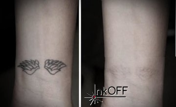 Odstránenie tetovania a zákroky Carbon Lifting inkOFF
